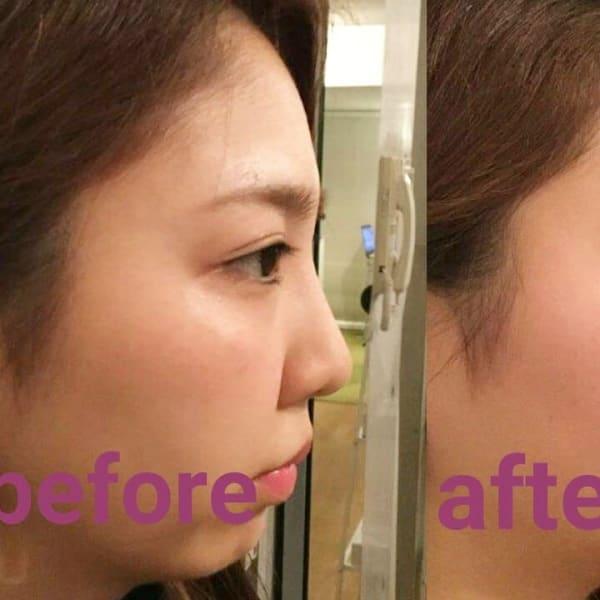 隆鼻矯正専門店 Raplit Plaisir福岡店