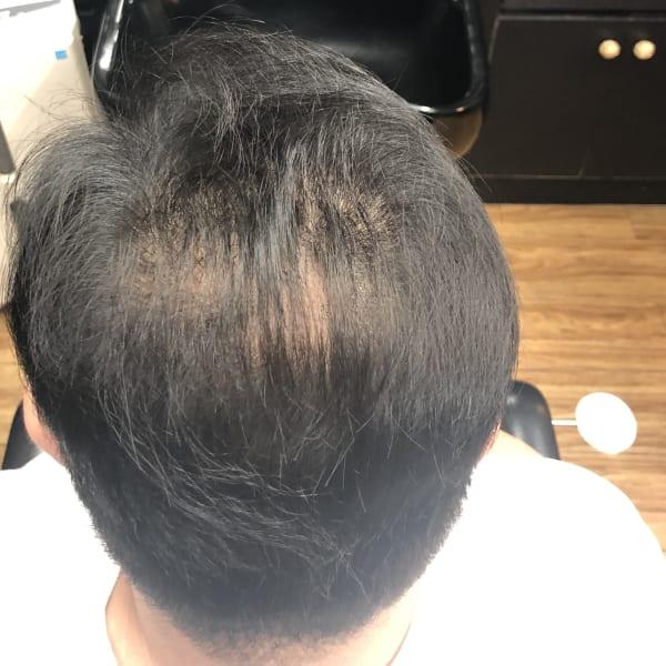 メンズヘア zoumou senka 増毛専科