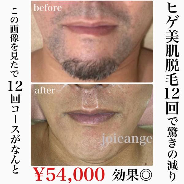 エステ&リラクゼーションサロン joieange  心斎橋店