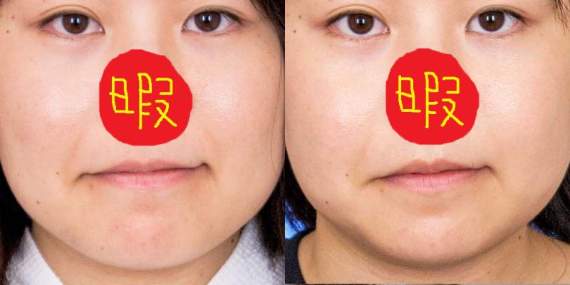 施術前と施術後の比較画像ですね。こうやって並べると違いが一目で分かるから凄いですね!
