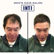 INTI(インティ)